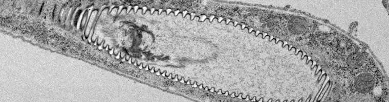 A unicellular tracheal branch forms as a lumen inside specialized cells (Niklova and Metzstein).