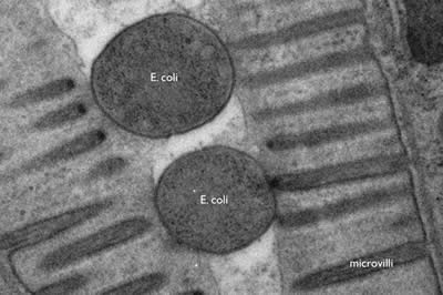 Electron Microscope Images Of Bacteria